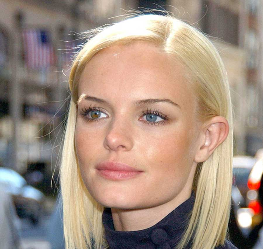 A List Of Celebrities With Two Colored Eyes Heterochromia - 660×660
